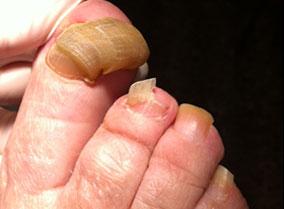 La foto atopicheskogo de la dermatitis antes del tratamiento y después de